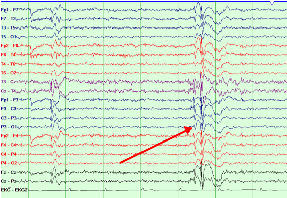 EEG Diagram 2