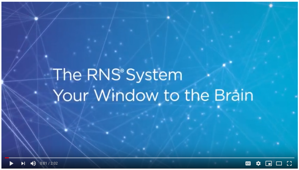 How the RNS System Works