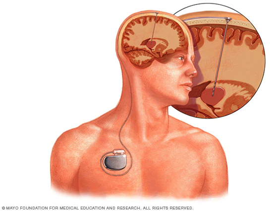 Deep brain stimulation - Mayo Foundation
